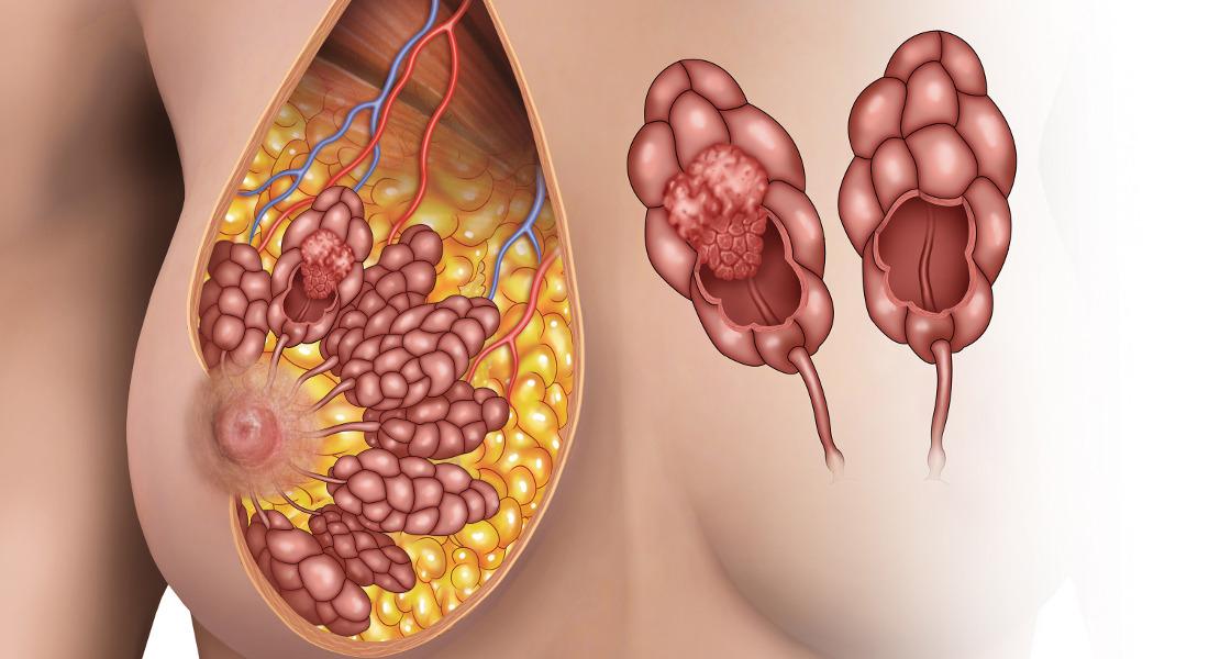 tumore-seno-nuova-cura